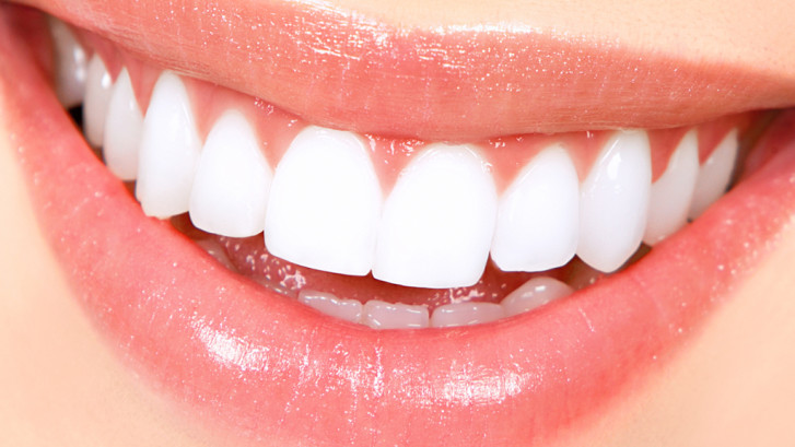 How much does zoom teeth whitening cost uk